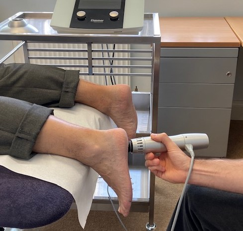 shockwave-therapy-plantar-fasciitis-physio2go-st-albans