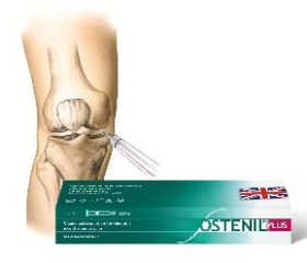 Ostenil Plus Joint Injections